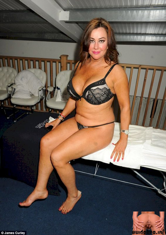 fat invasive whitening fillers buxom herself bra appleton turning lip daily treating london